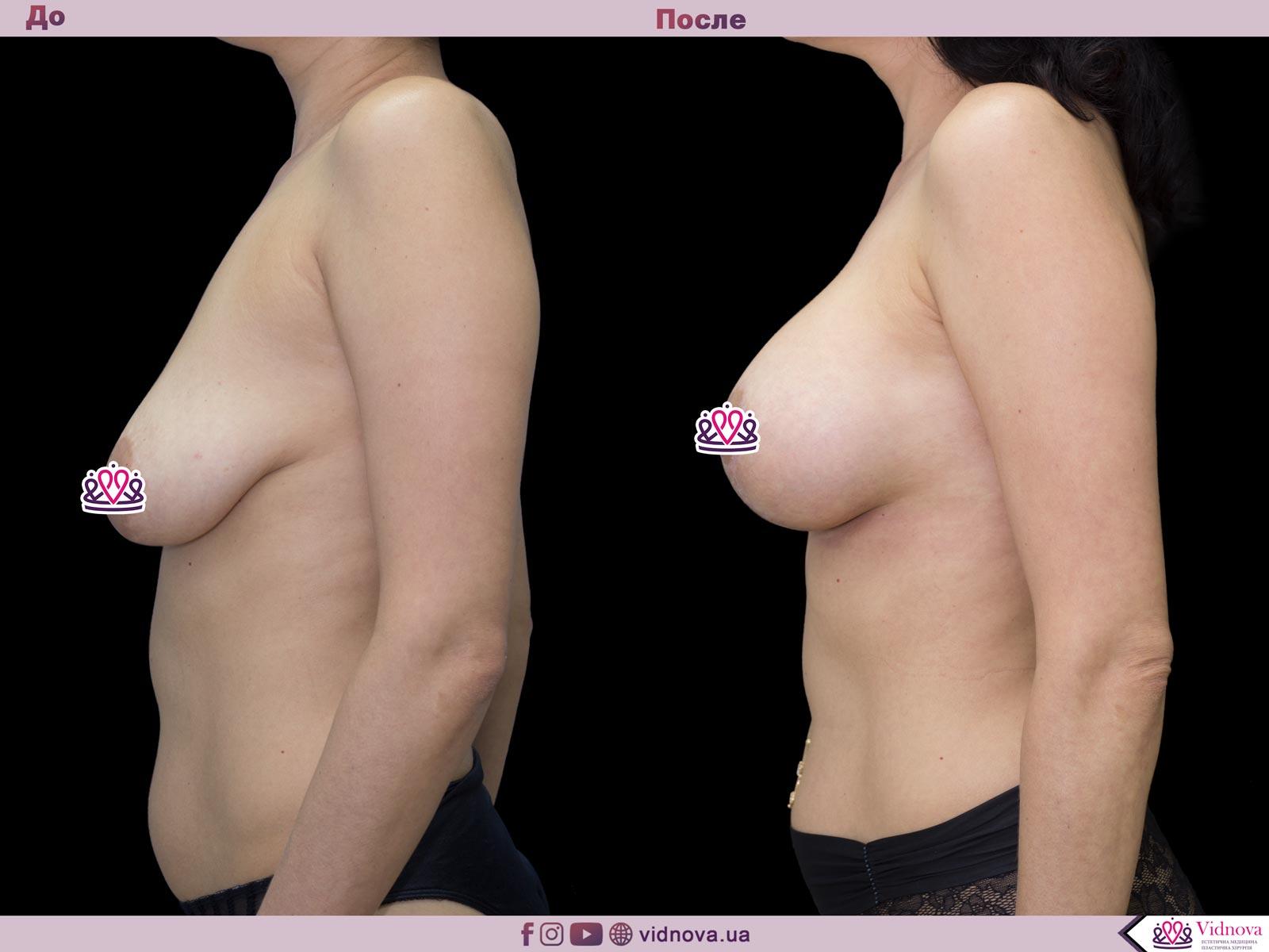 Пластика груди: результаты до и после - Пример №54-2 - Светлана Работенко