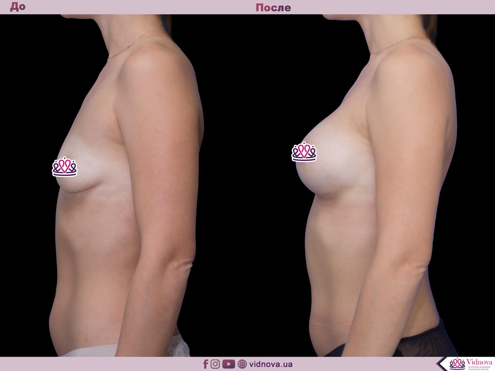 Пластика груди: результаты до и после - Пример №52-2 - Светлана Работенко