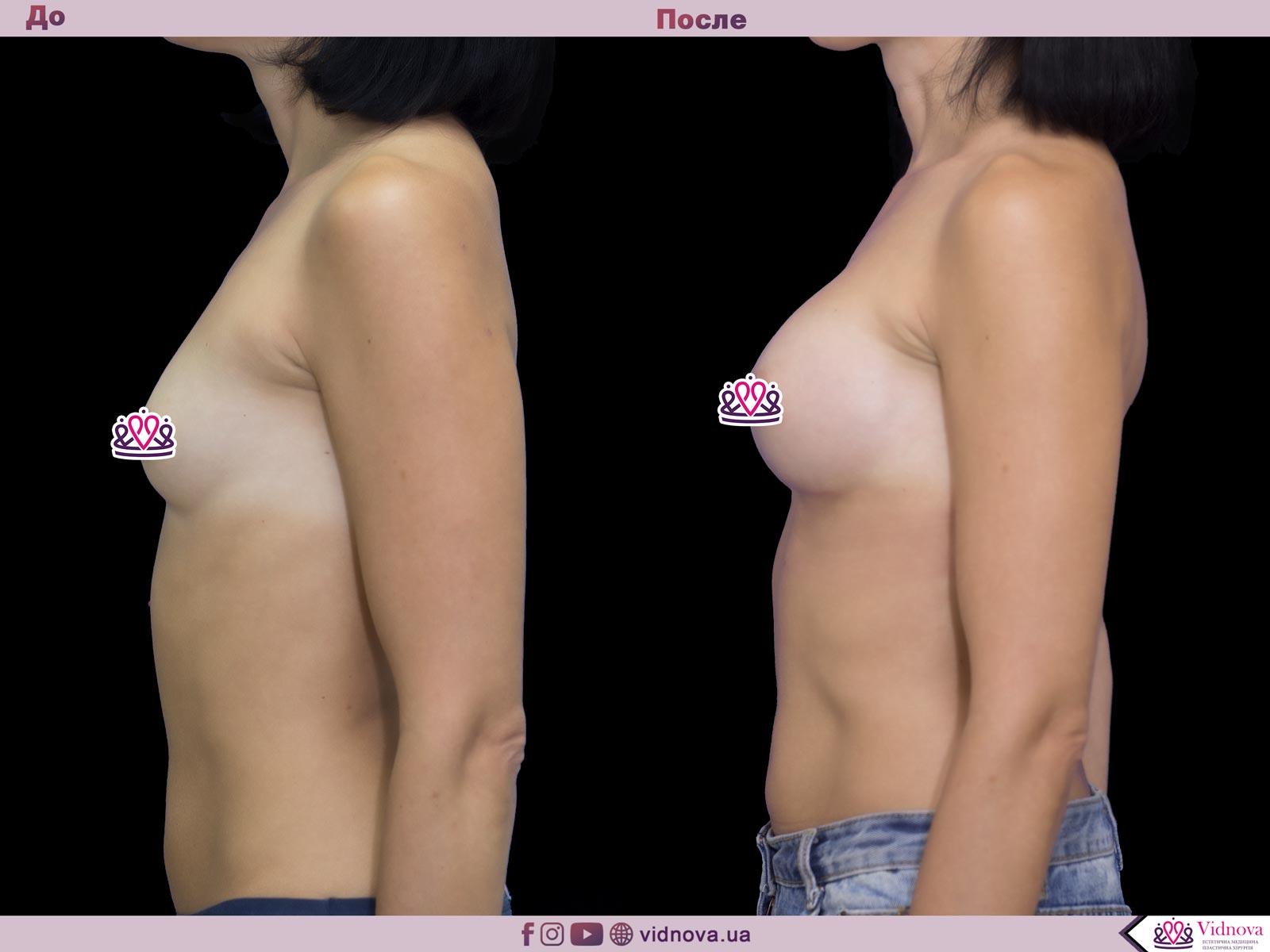Пластика груди: результаты до и после - Пример №51-2 - Светлана Работенко
