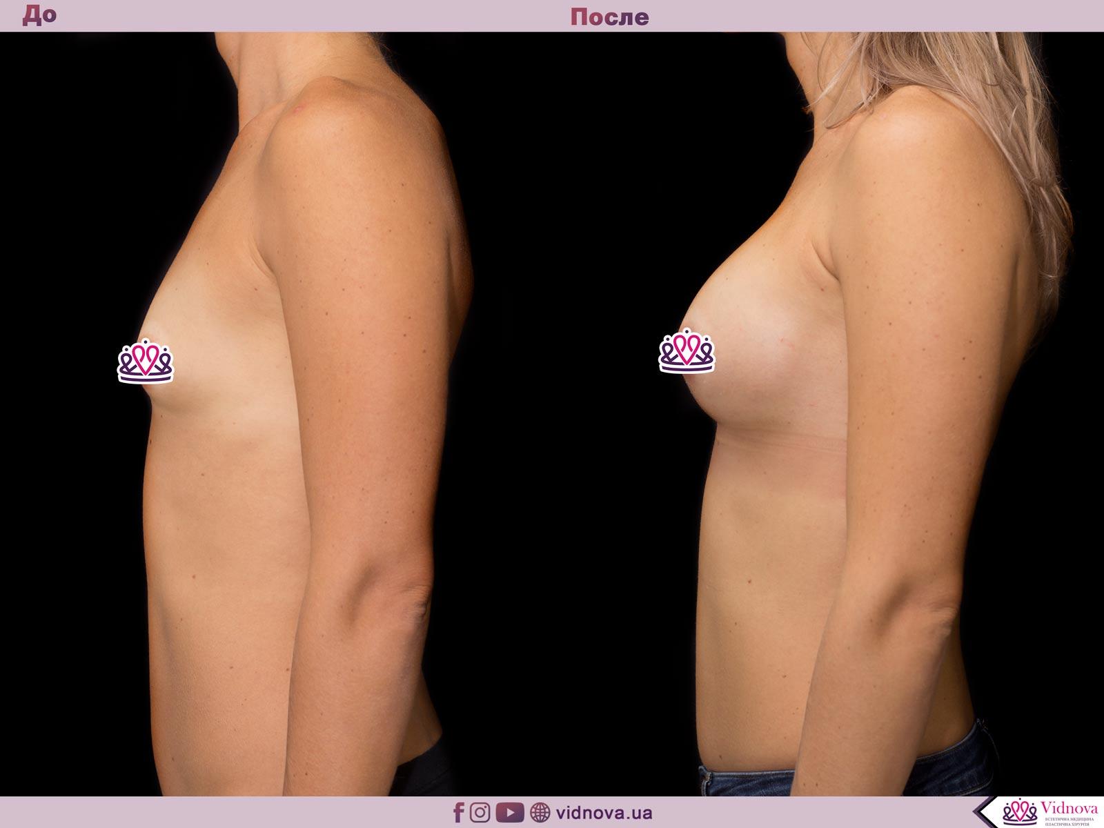 Пластика груди: результаты до и после - Пример №57-2 - Светлана Работенко