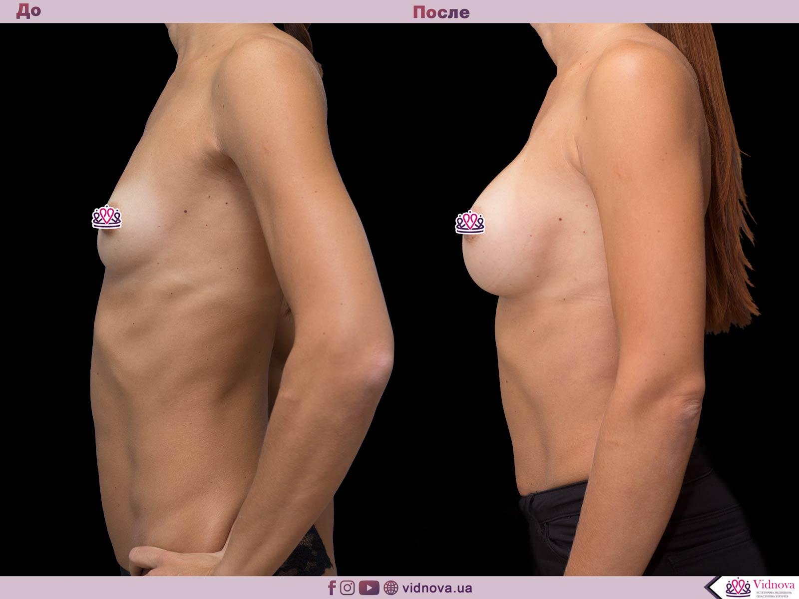 Пластика груди: результаты до и после - Пример №55-2 - Светлана Работенко