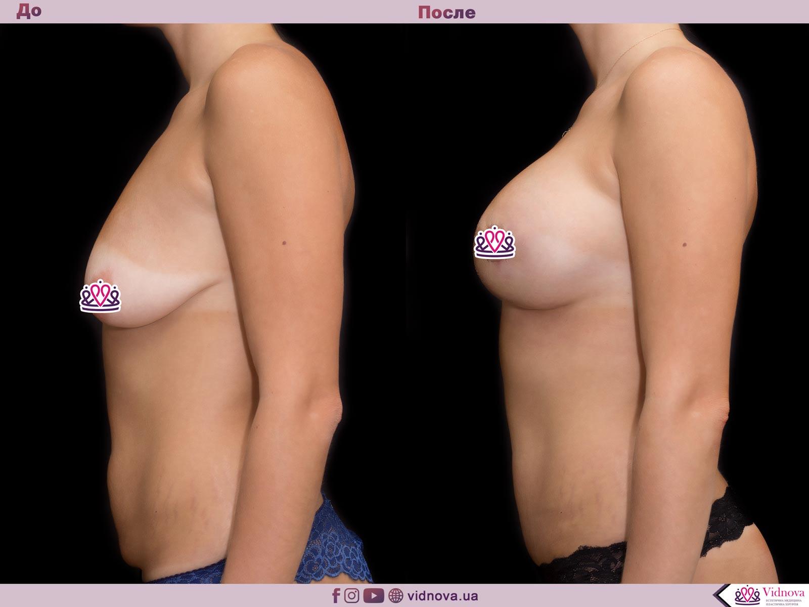 Пластика груди: результаты до и после - Пример №61-2 - Светлана Работенко