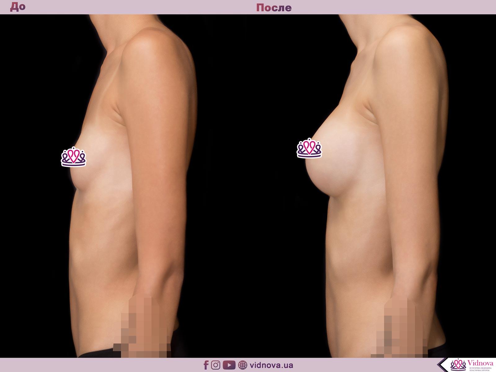 Пластика груди: результаты до и после - Пример №60-2 - Светлана Работенко