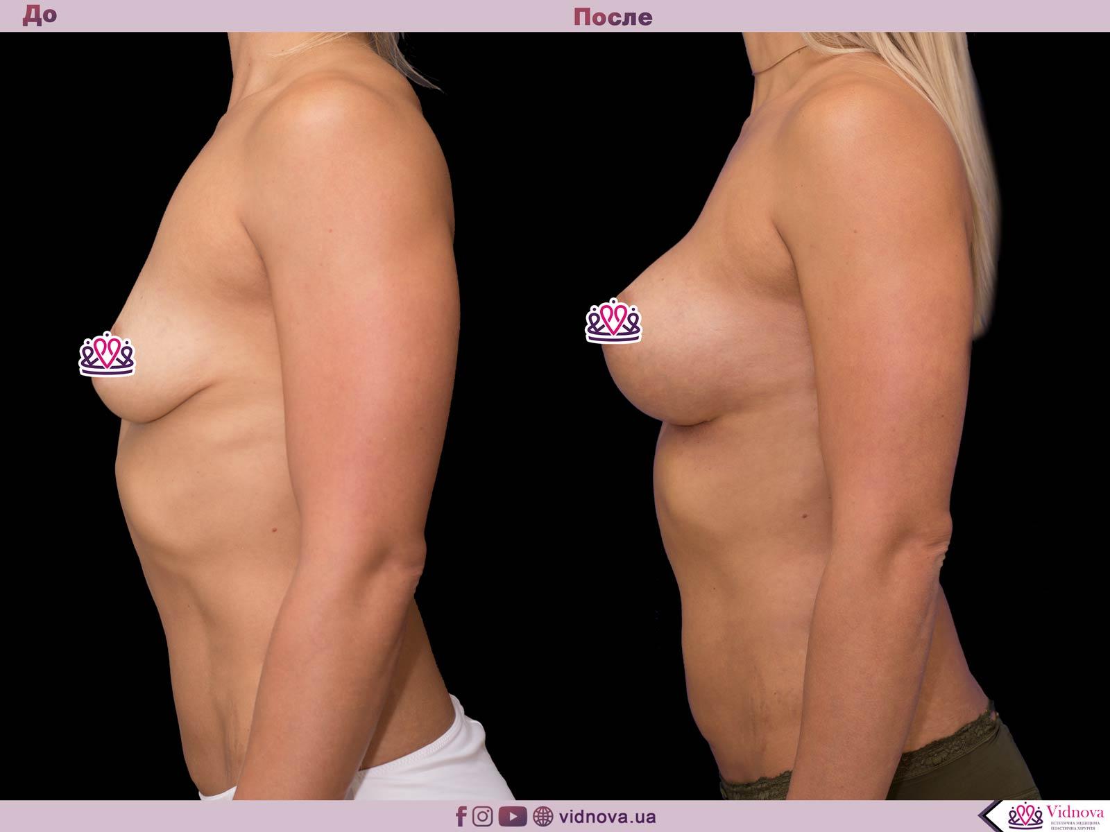 Пластика груди: результаты до и после - Пример №64-2 - Светлана Работенко