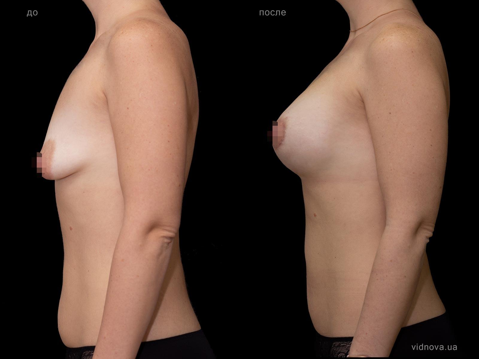 Пластика груди: результаты до и после - Пример №78-1 - Светлана Работенко