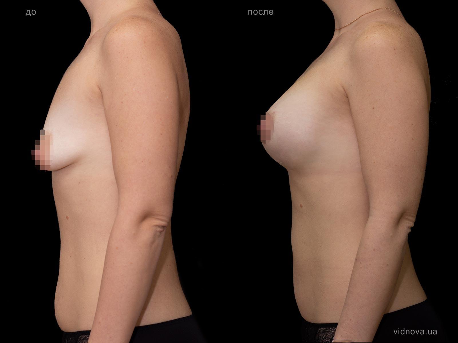 Пластика груди: результаты до и после - Пример №78-2 - Светлана Работенко