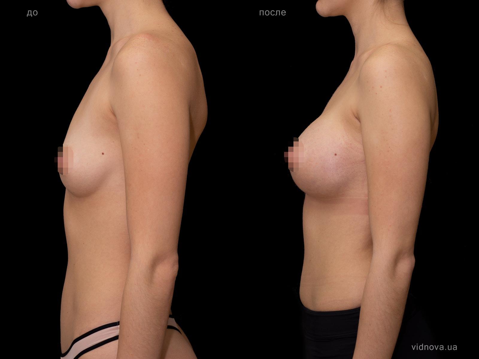 Пластика груди: результаты до и после - Пример №74-2 - Светлана Работенко