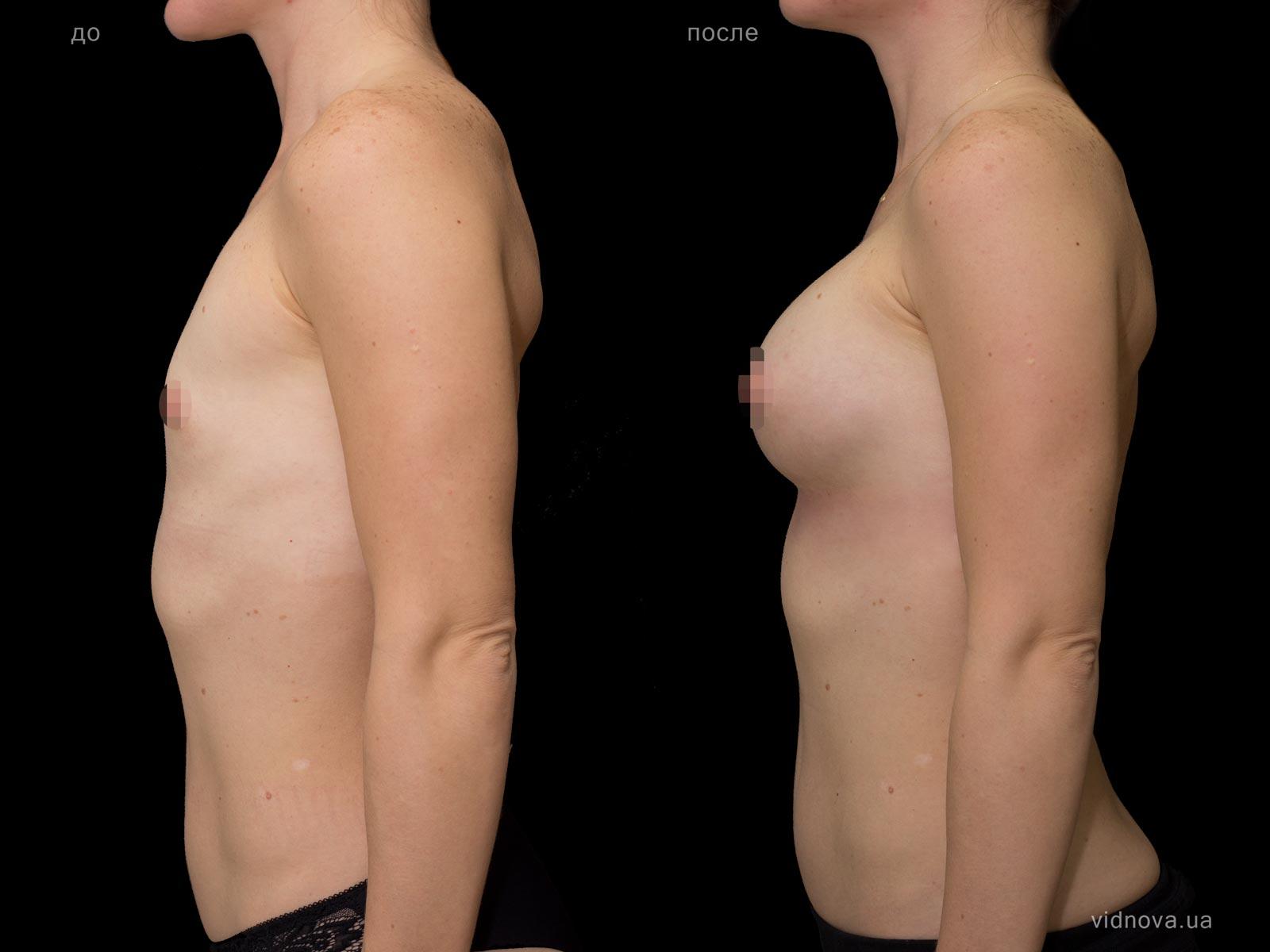 Пластика груди: результаты до и после - Пример №70-2 - Светлана Работенко