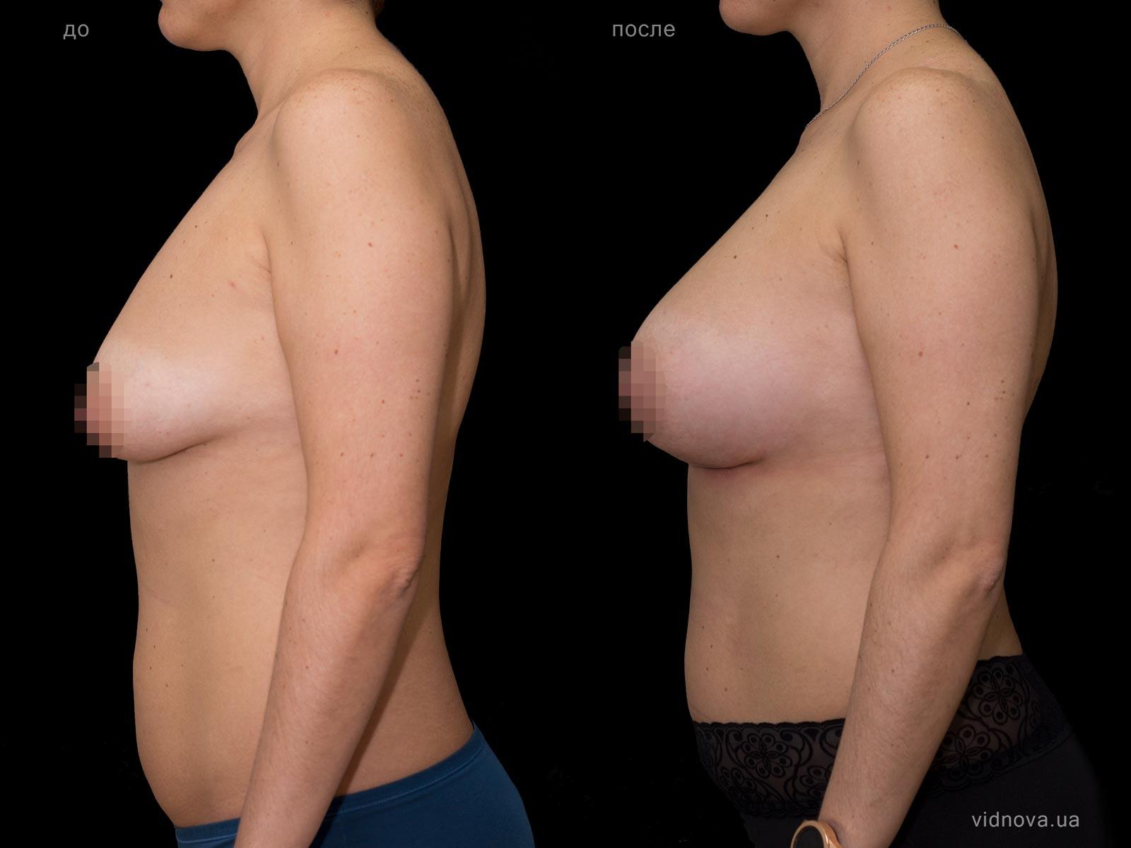 Пластика груди: результаты до и после - Пример №68-2 - Светлана Работенко