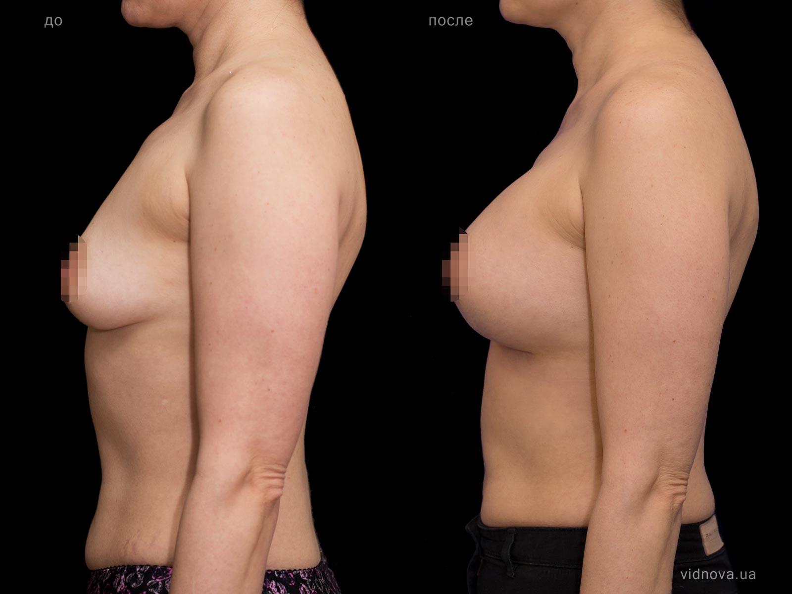Пластика груди: результаты до и после - Пример №69-2 - Светлана Работенко