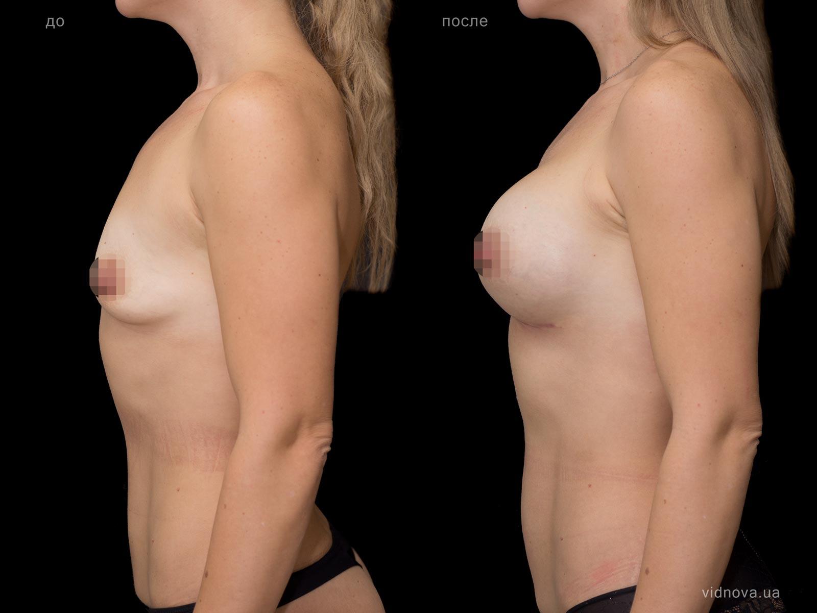 Пластика груди: результаты до и после - Пример №71-2 - Светлана Работенко