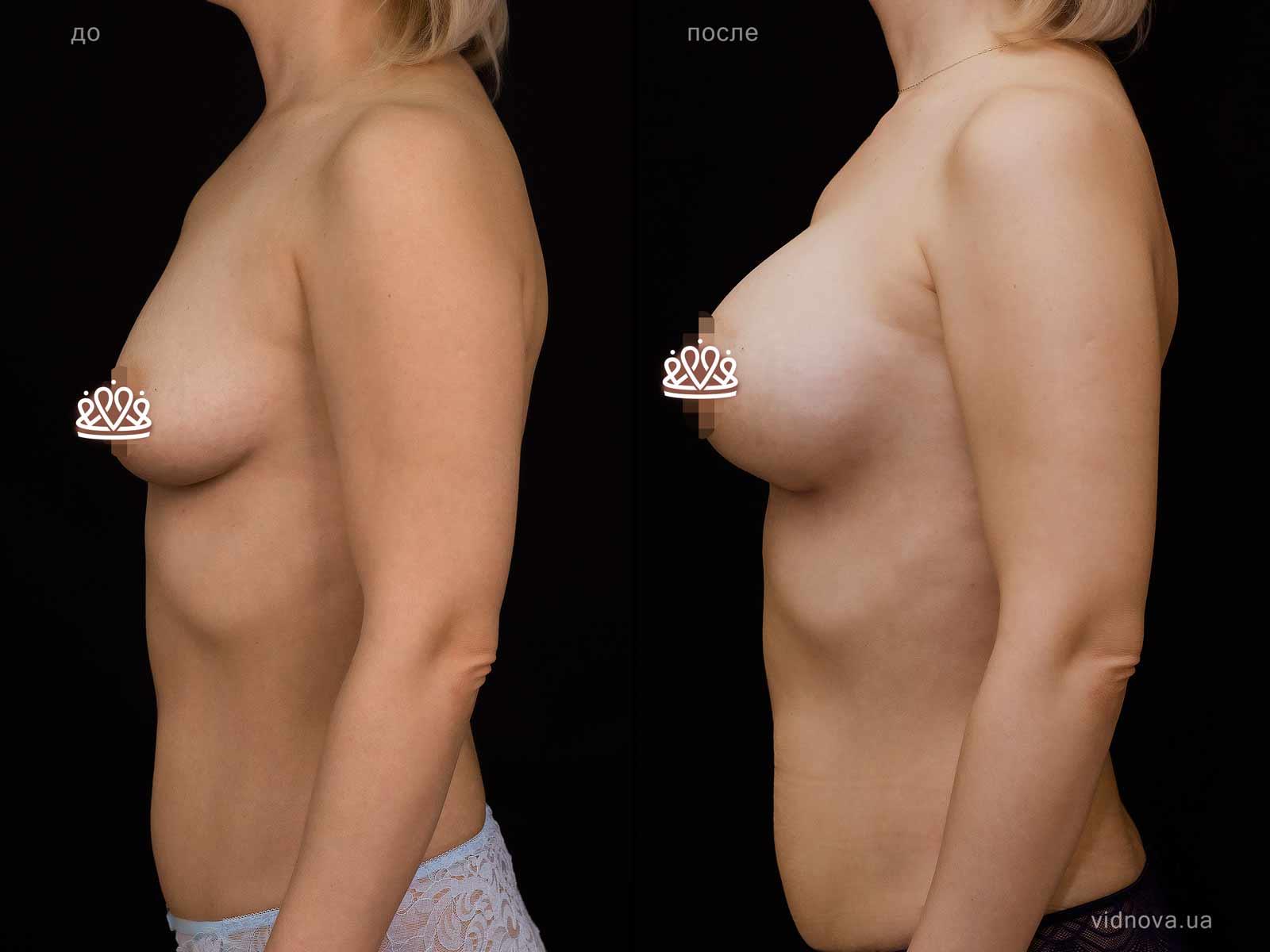 Пластика груди: результаты до и после - Пример №121-2 - Светлана Работенко