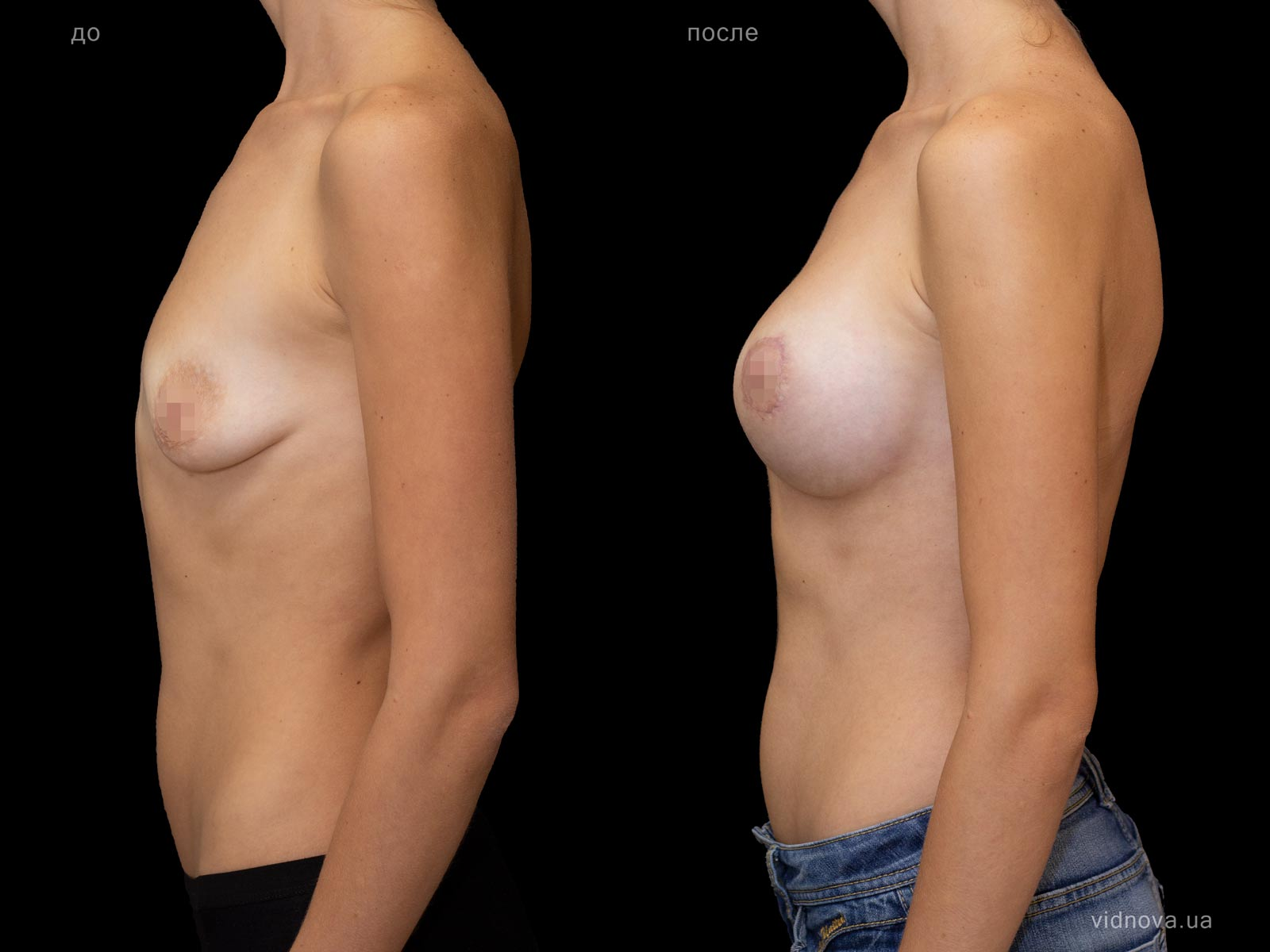 Пластика груди: результаты до и после - Пример №98-2 - Светлана Работенко