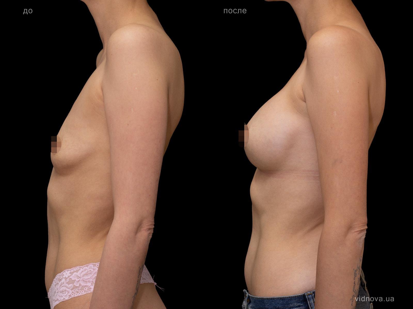 Пластика груди: результаты до и после - Пример №96-2 - Светлана Работенко