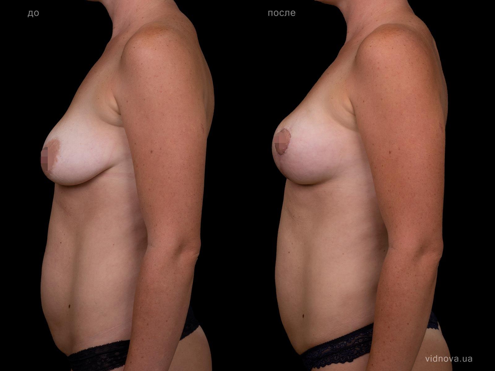 Пластика груди: результаты до и после - Пример №94-2 - Светлана Работенко