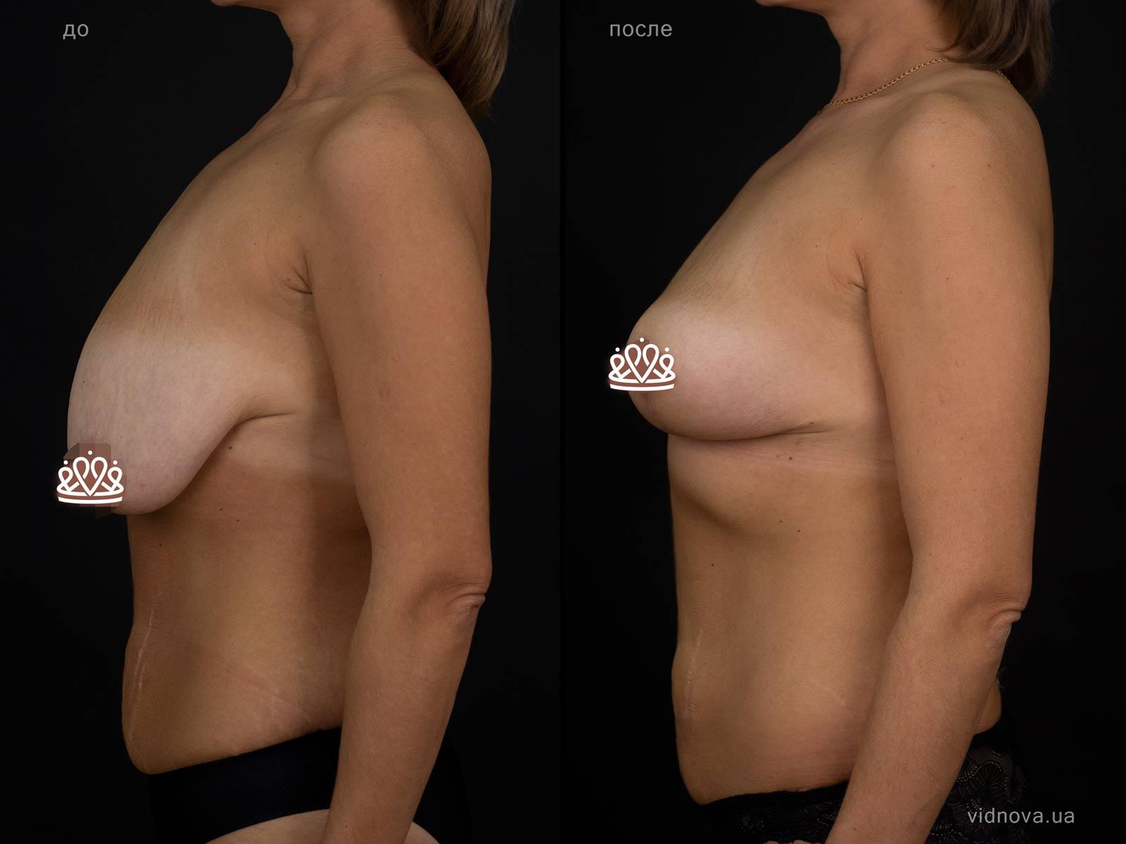 Пластика груди: результаты до и после - Пример №117-2 - Светлана Работенко