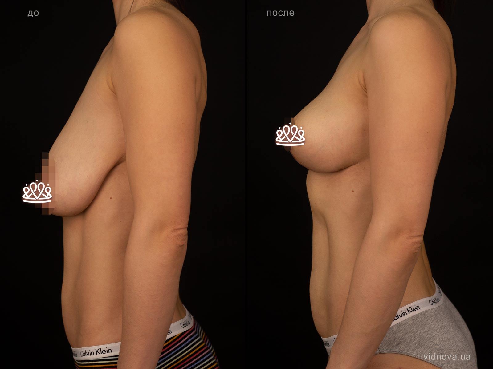 Пластика груди: результаты до и после - Пример №126-2 - Светлана Работенко