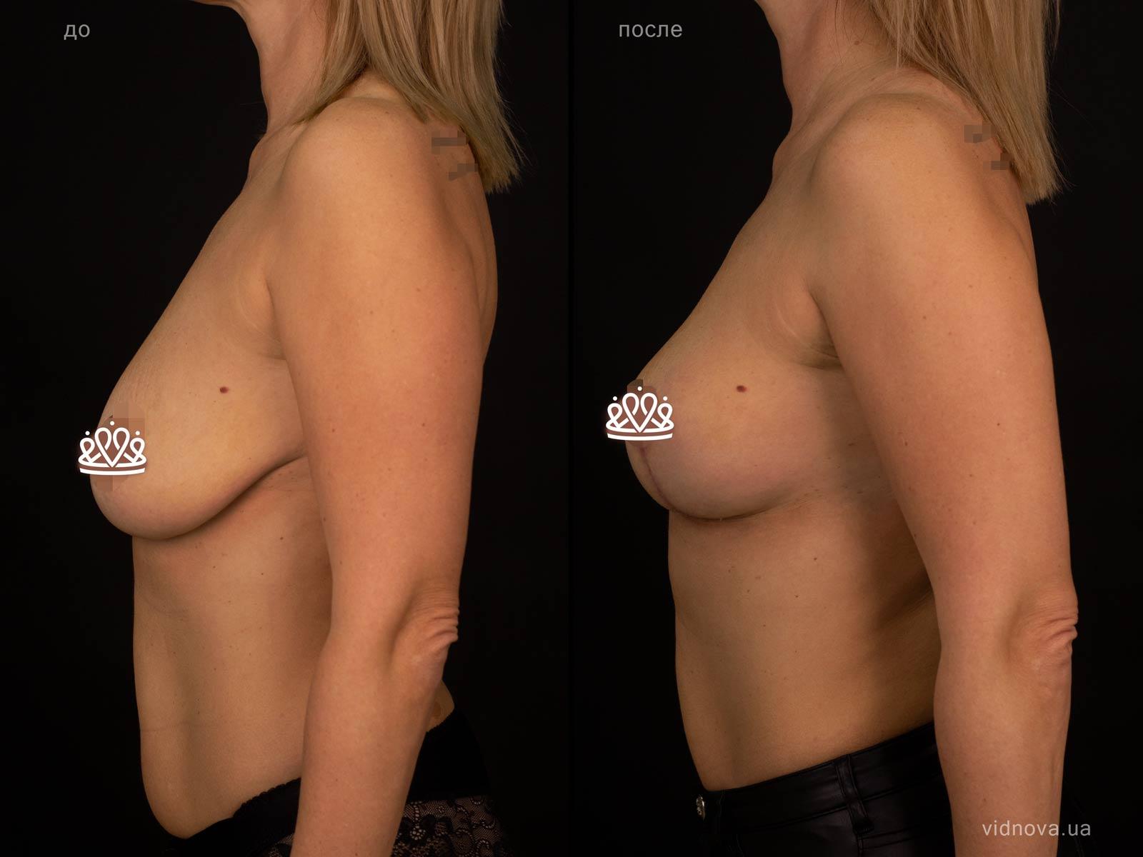 Пластика груди: результаты до и после - Пример №124-2 - Светлана Работенко