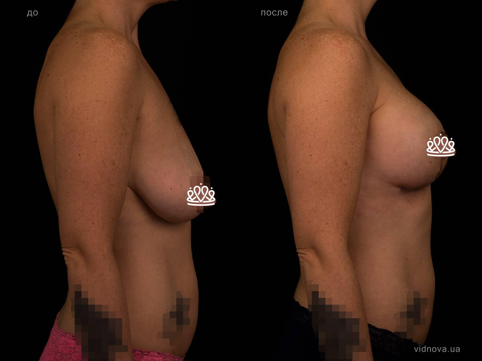 Пластика груди: результаты до и после - Пример №125-2 - Светлана Работенко