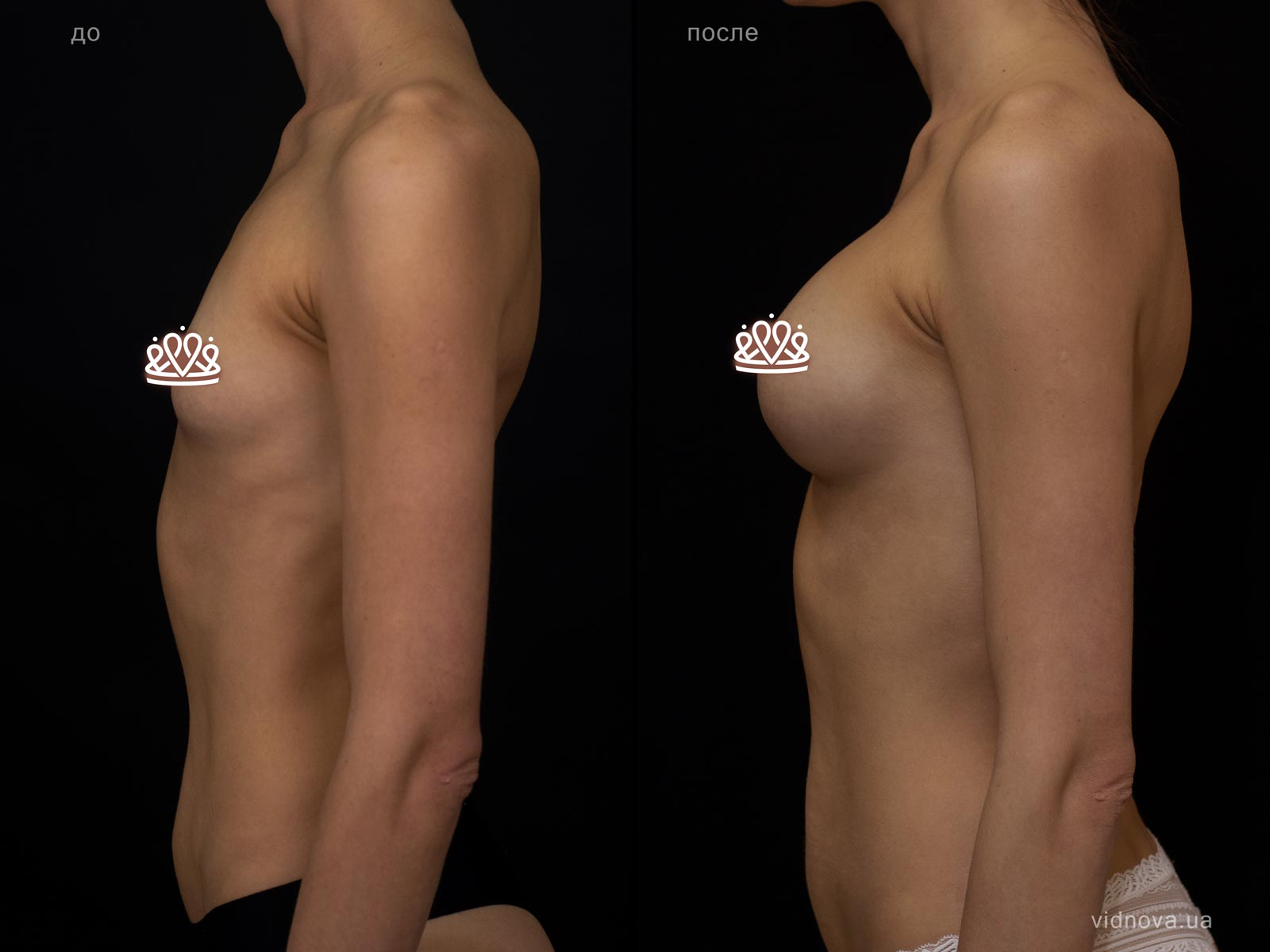 Пластика груди: результаты до и после - Пример №119-2 - Светлана Работенко
