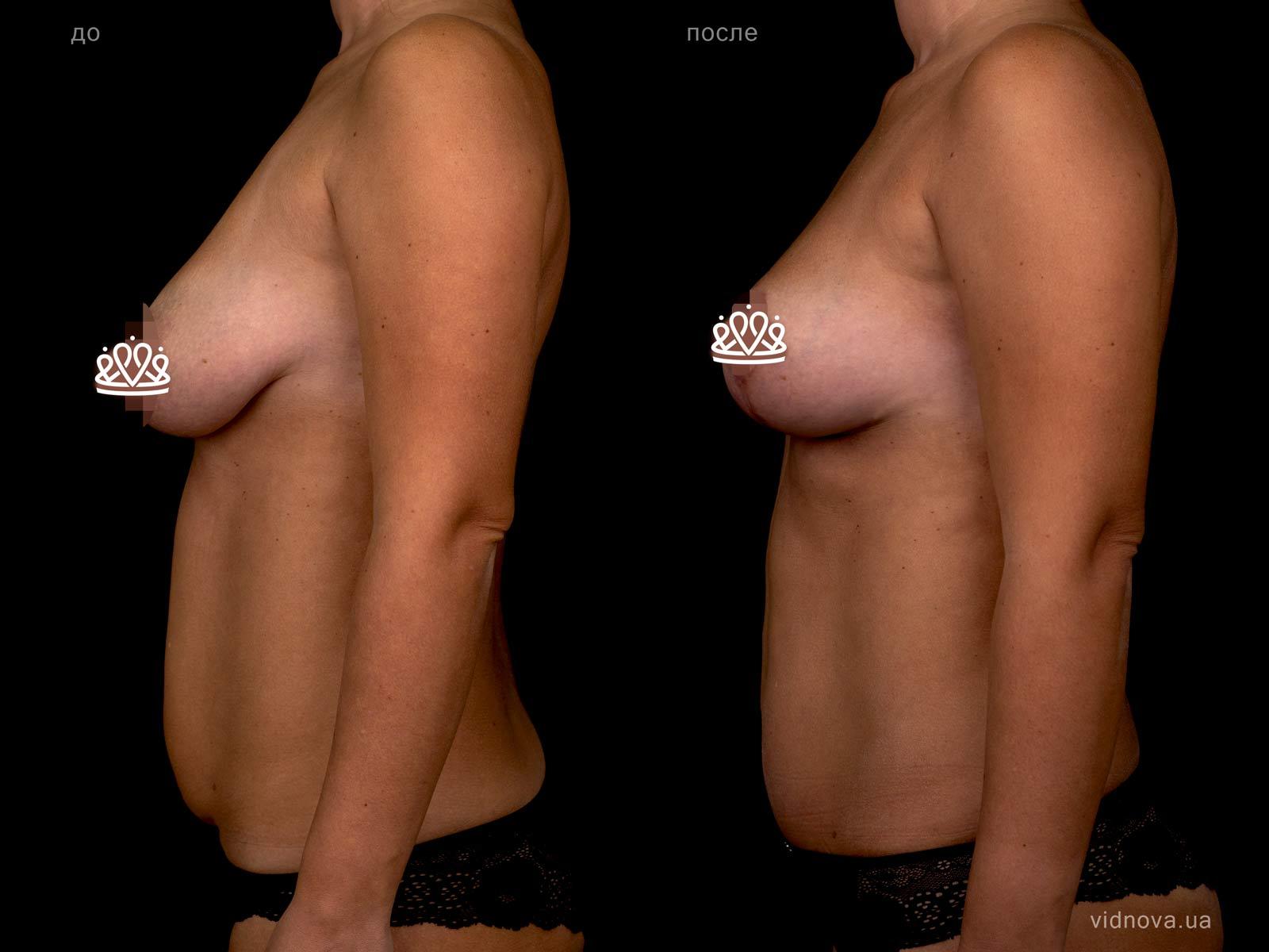 Пластика груди: результаты до и после - Пример №111-3 - Светлана Работенко