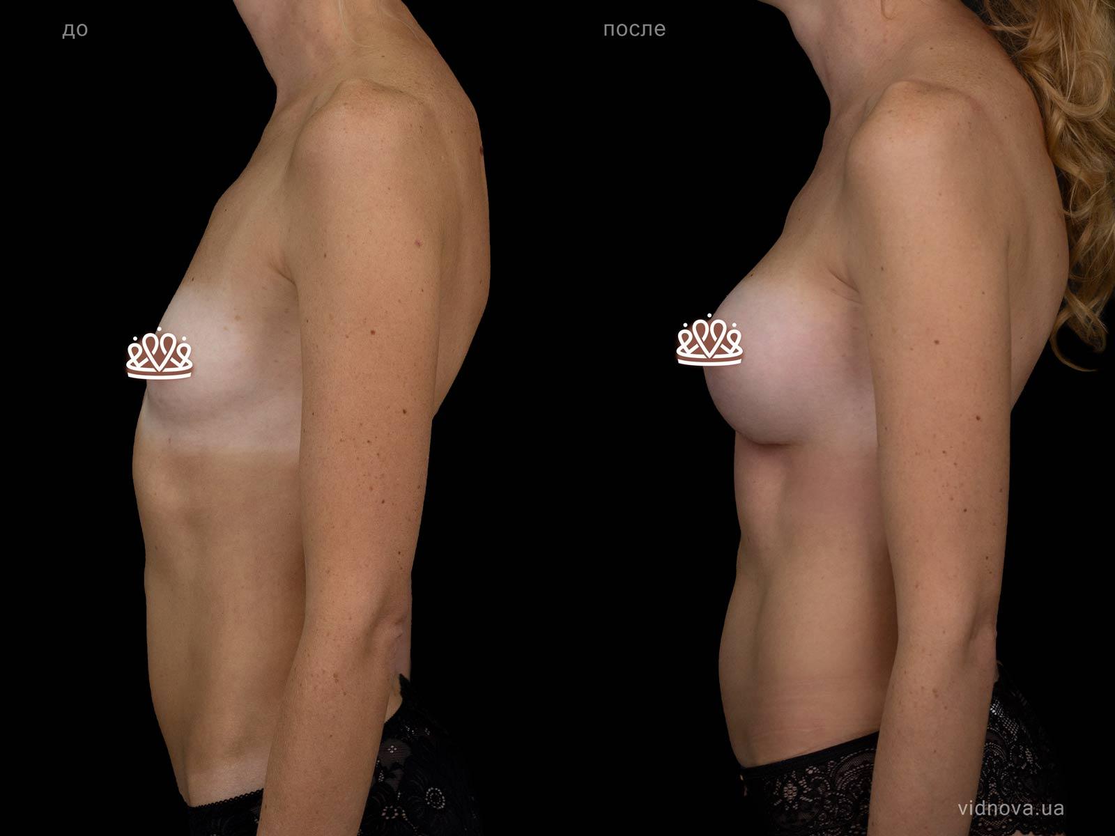 Пластика груди: результаты до и после - Пример №108-2 - Светлана Работенко