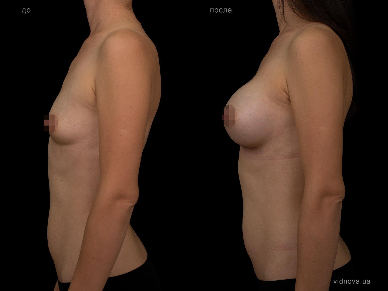 Пластика груди: результаты до и после - Пример №102-2 - Светлана Работенко