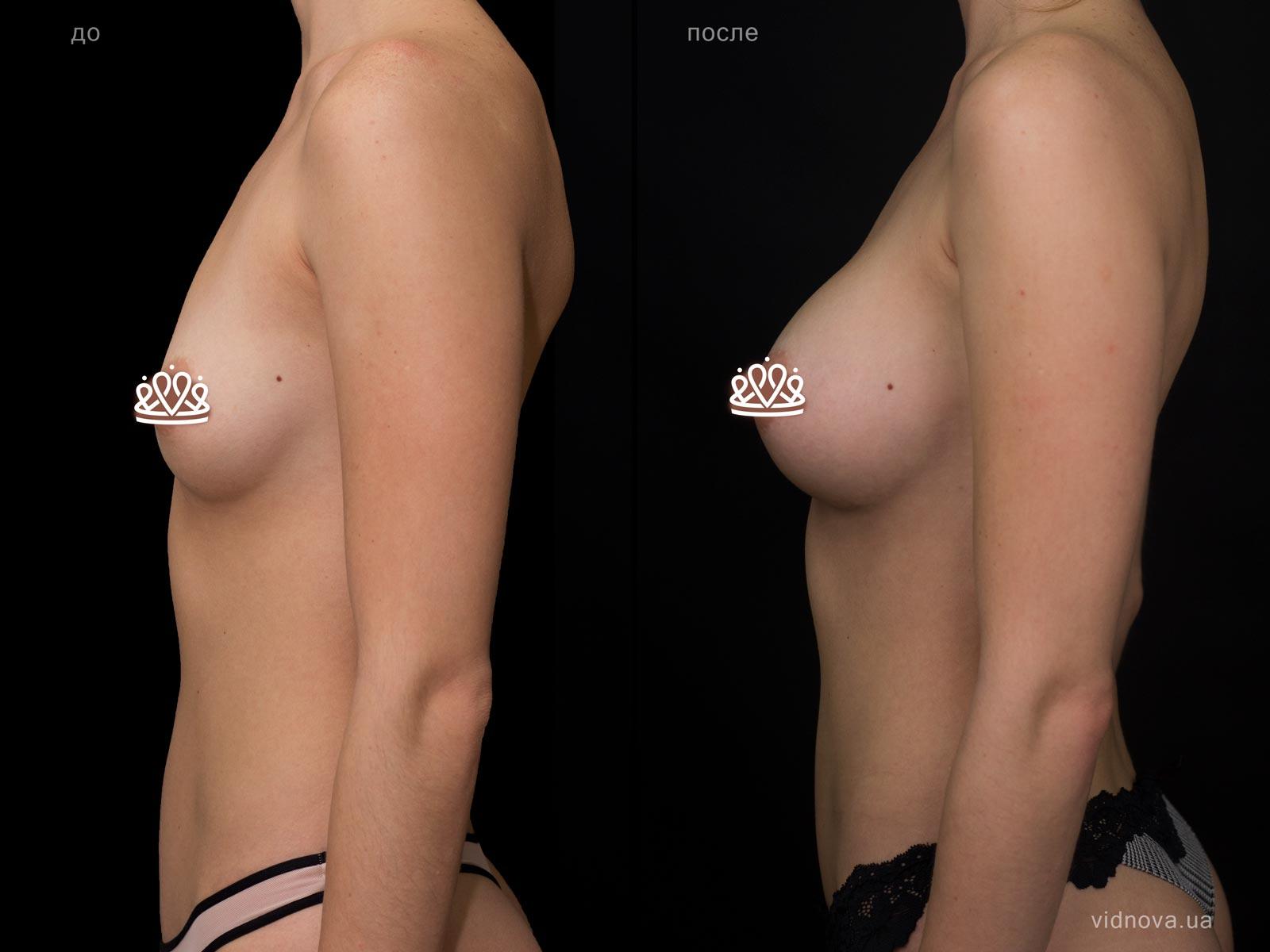 Пластика груди: результаты до и после - Пример №110-2 - Светлана Работенко