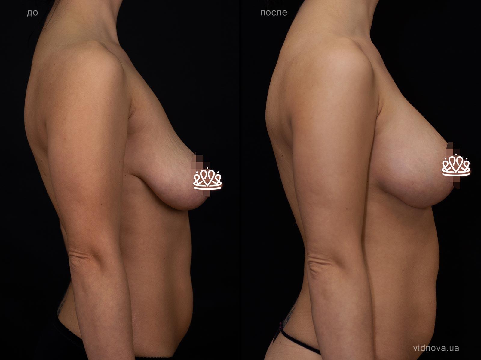 Пластика груди: результаты до и после - Пример №116-2 - Светлана Работенко