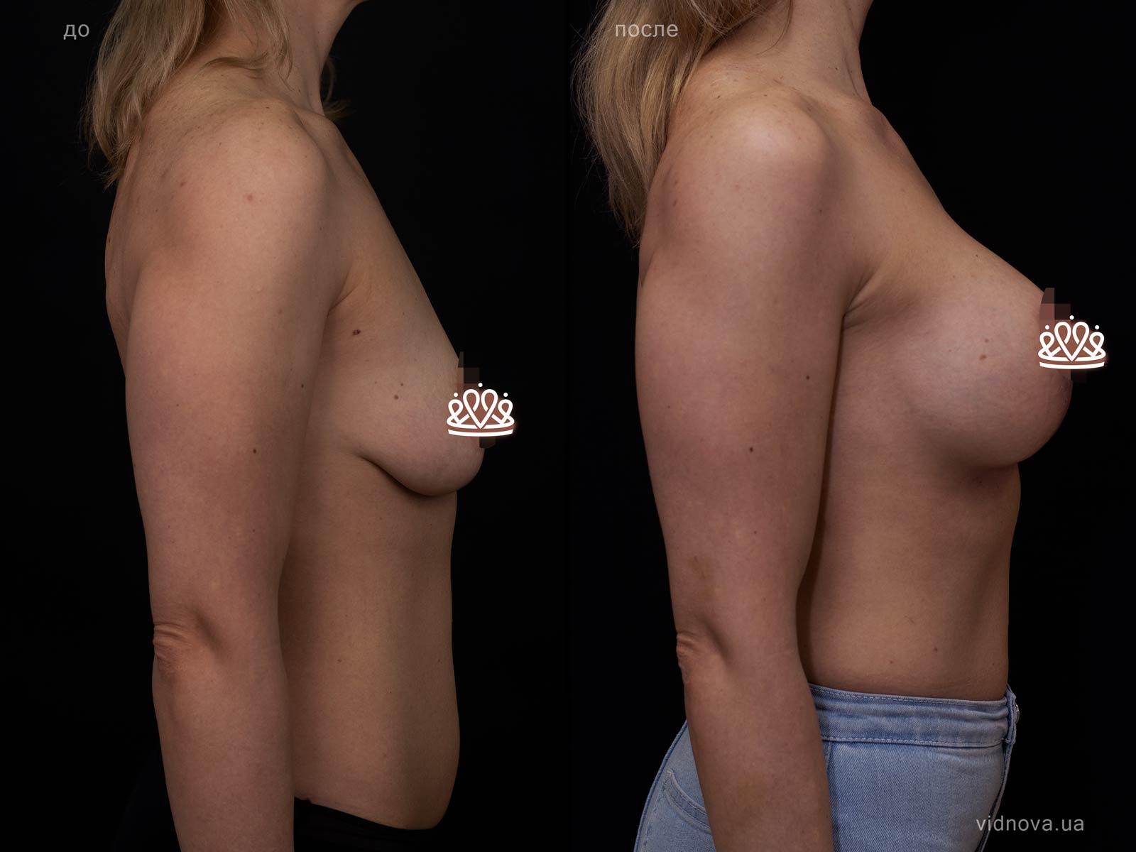 Пластика груди: результаты до и после - Пример №113-2 - Светлана Работенко