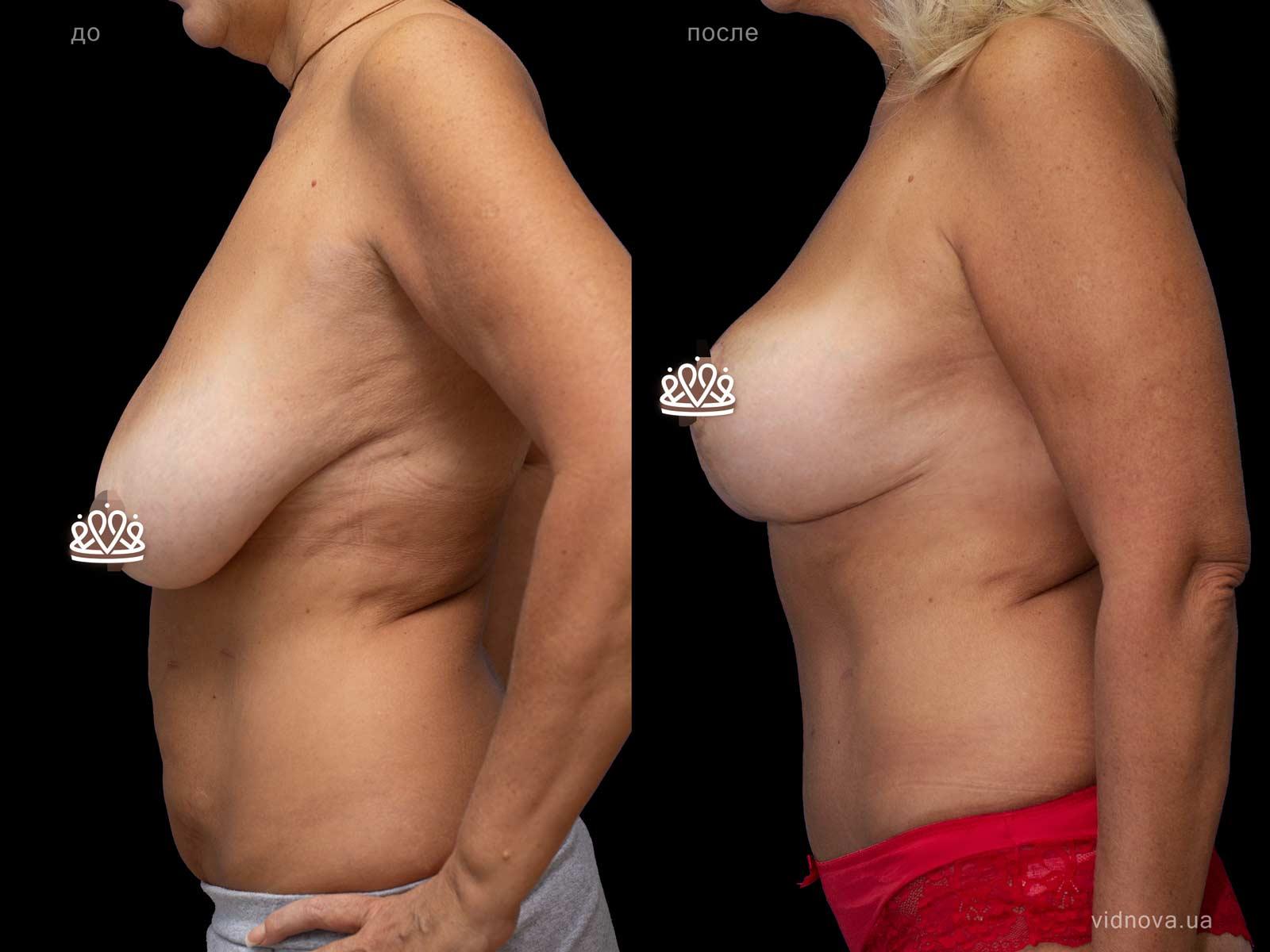 Пластика груди: результаты до и после - Пример №114-2 - Светлана Работенко