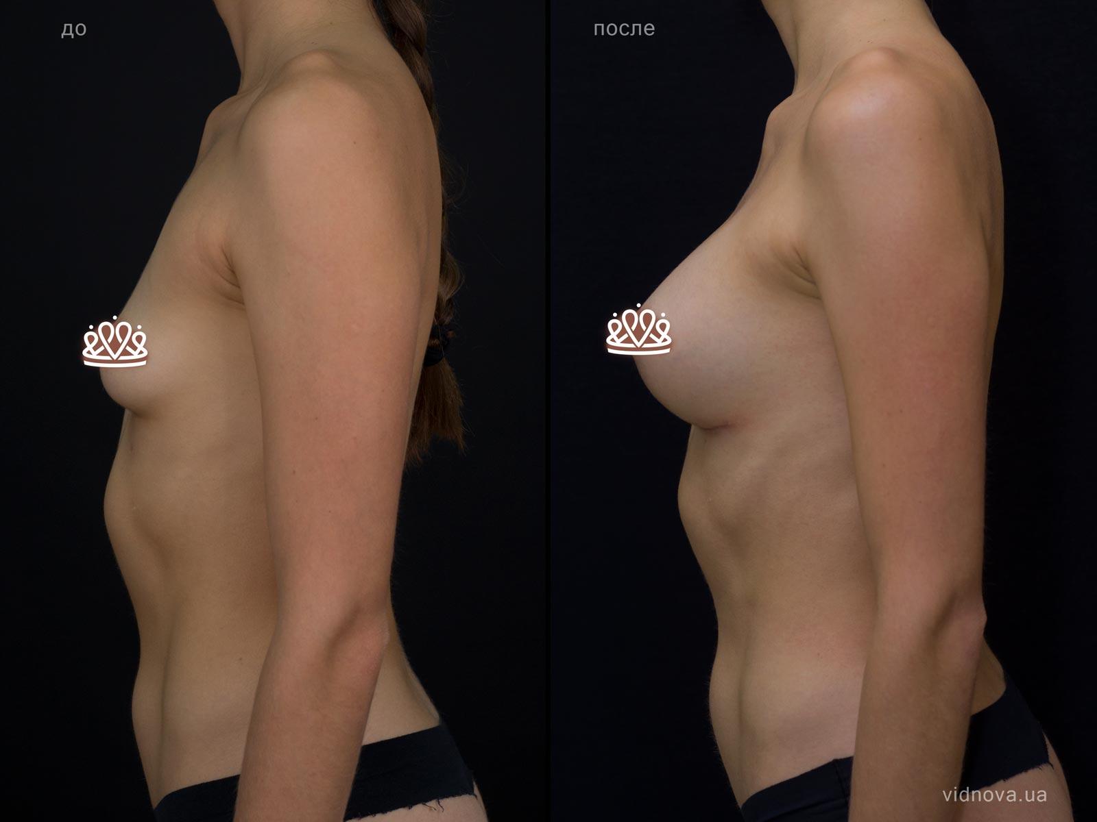 Пластика груди: результаты до и после - Пример №115-2 - Светлана Работенко