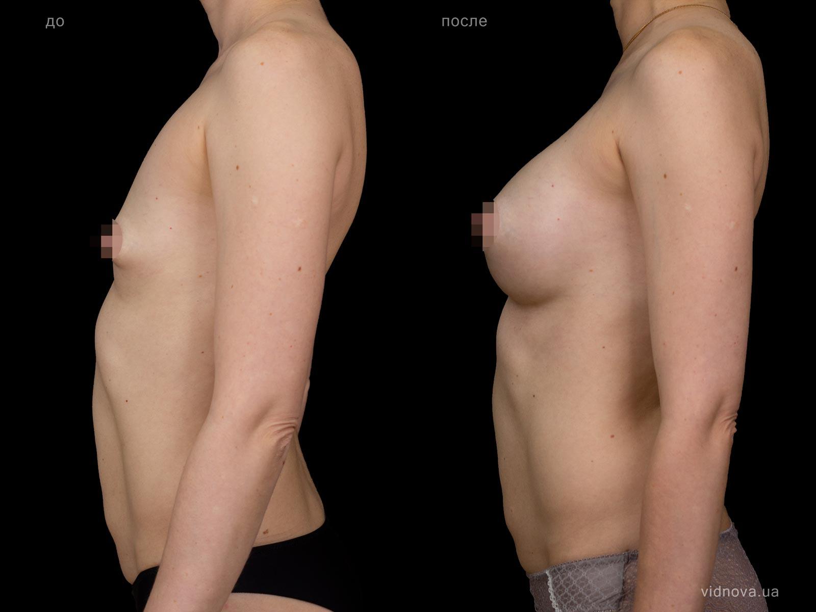 Пластика груди: результаты до и после - Пример №85-2 - Светлана Работенко