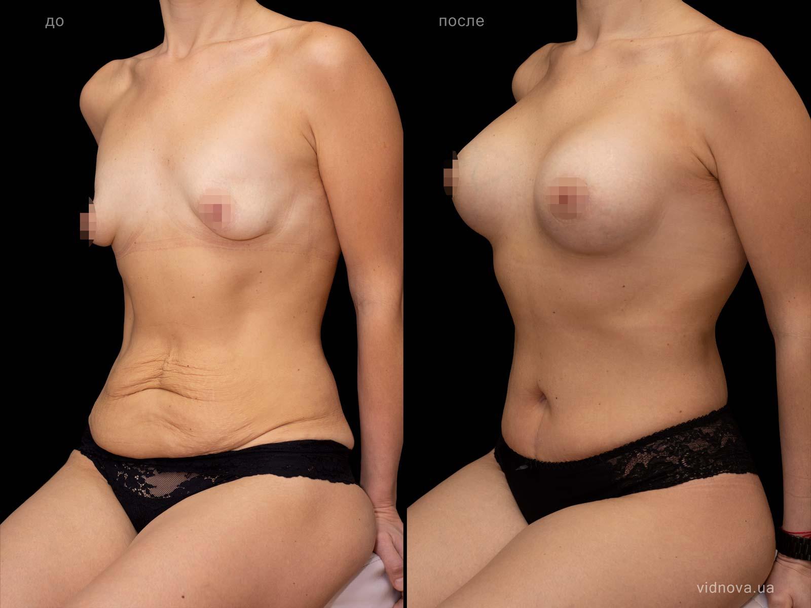 Пластика груди: результаты до и после - Пример №97-0 - Светлана Работенко