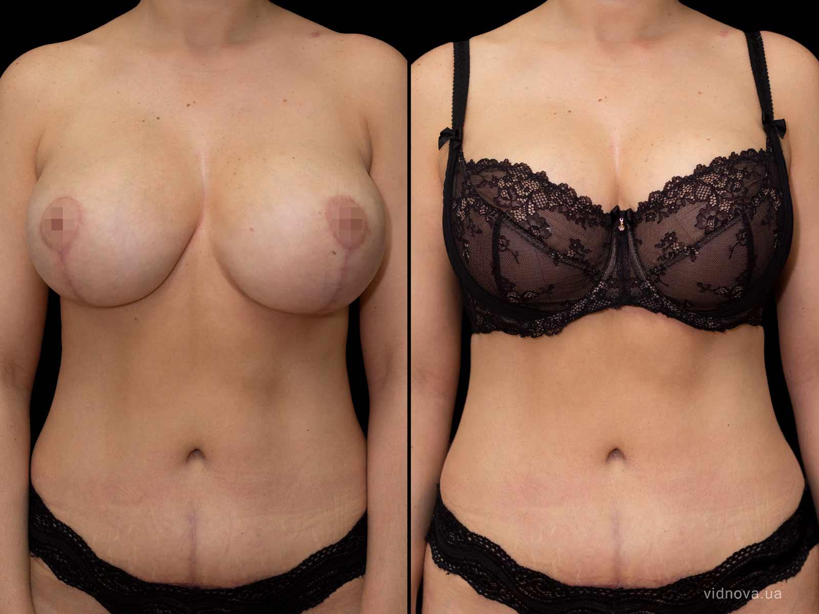 Пластика груди: результаты до и после - Пример №88-0 - Светлана Работенко