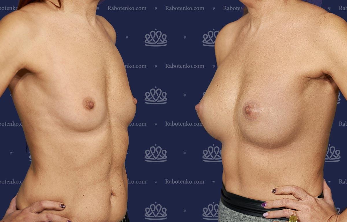 Пластика груди: результаты до и после - Пример №3-0 - Светлана Работенко