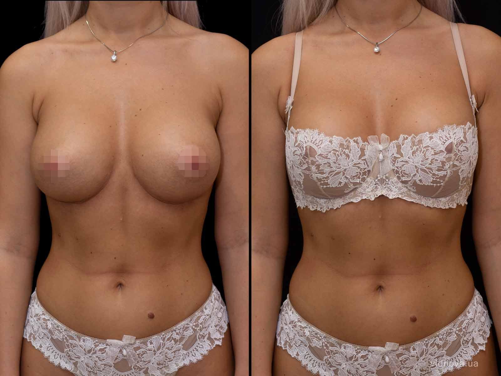 Увеличение груди, фото до-после