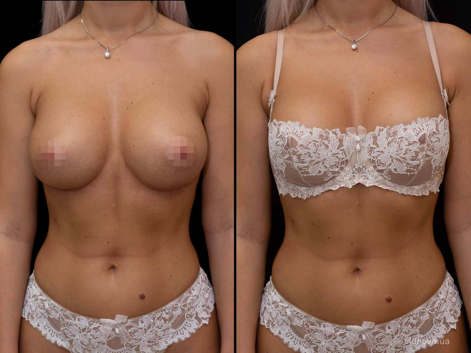 Увеличение груди 4s 3