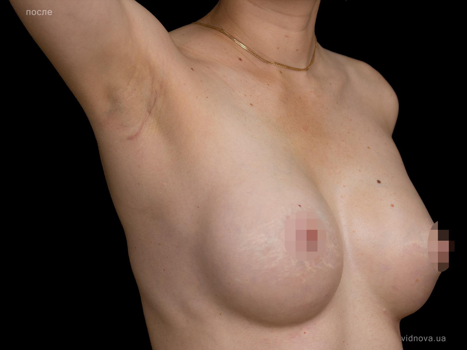 Пластика груди: результаты до и после - Пример №85-3 - Светлана Работенко