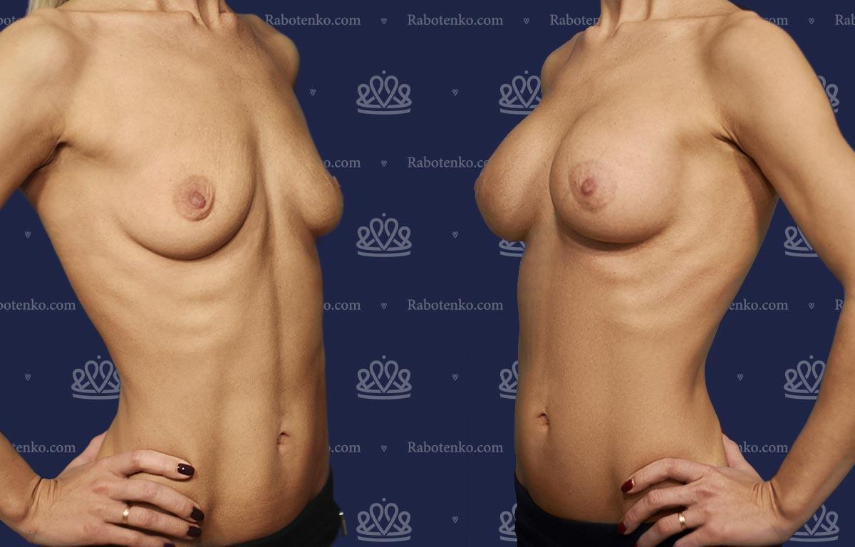 Пластика груди: результаты до и после - Пример №4-0 - Светлана Работенко