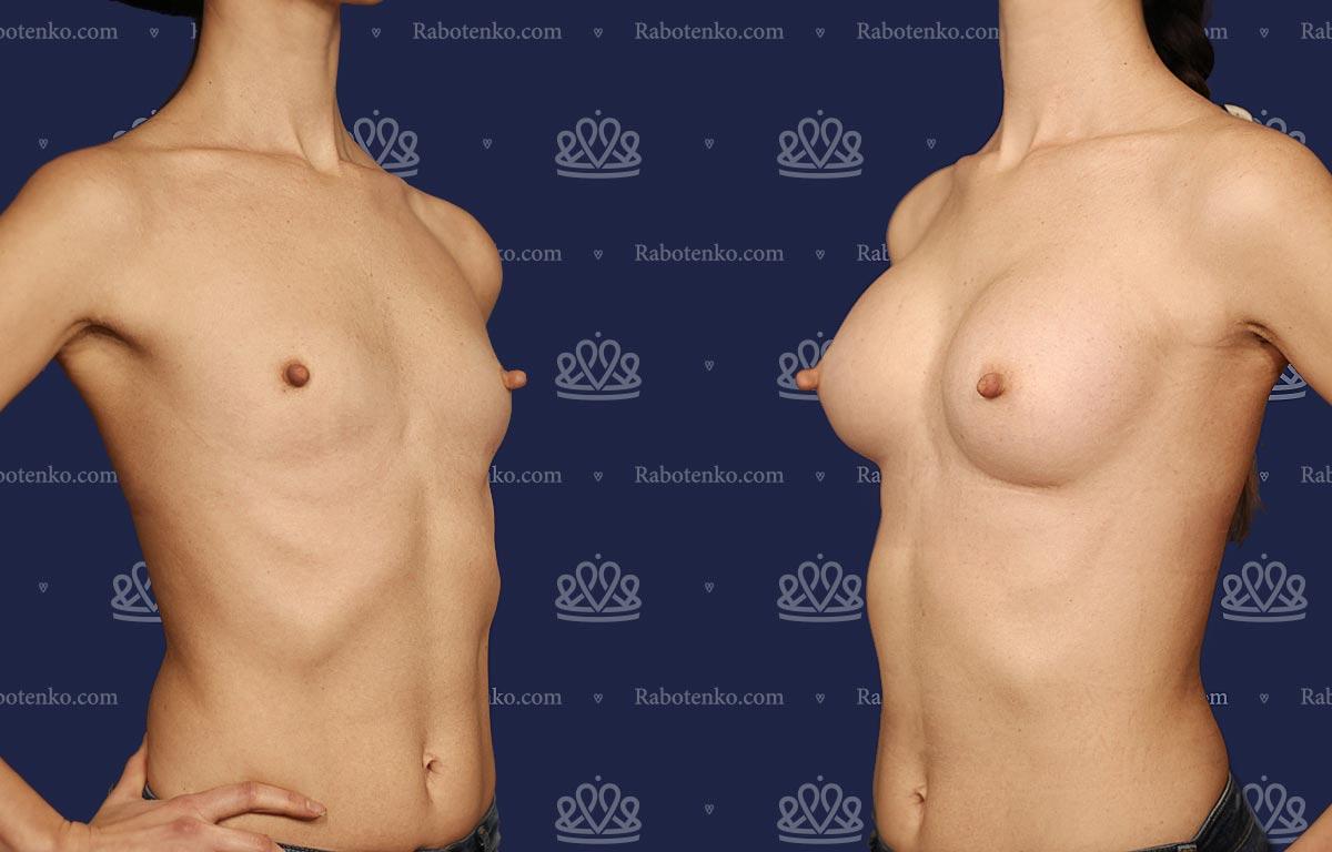 Пластика груди: результаты до и после - Пример №5-0 - Светлана Работенко
