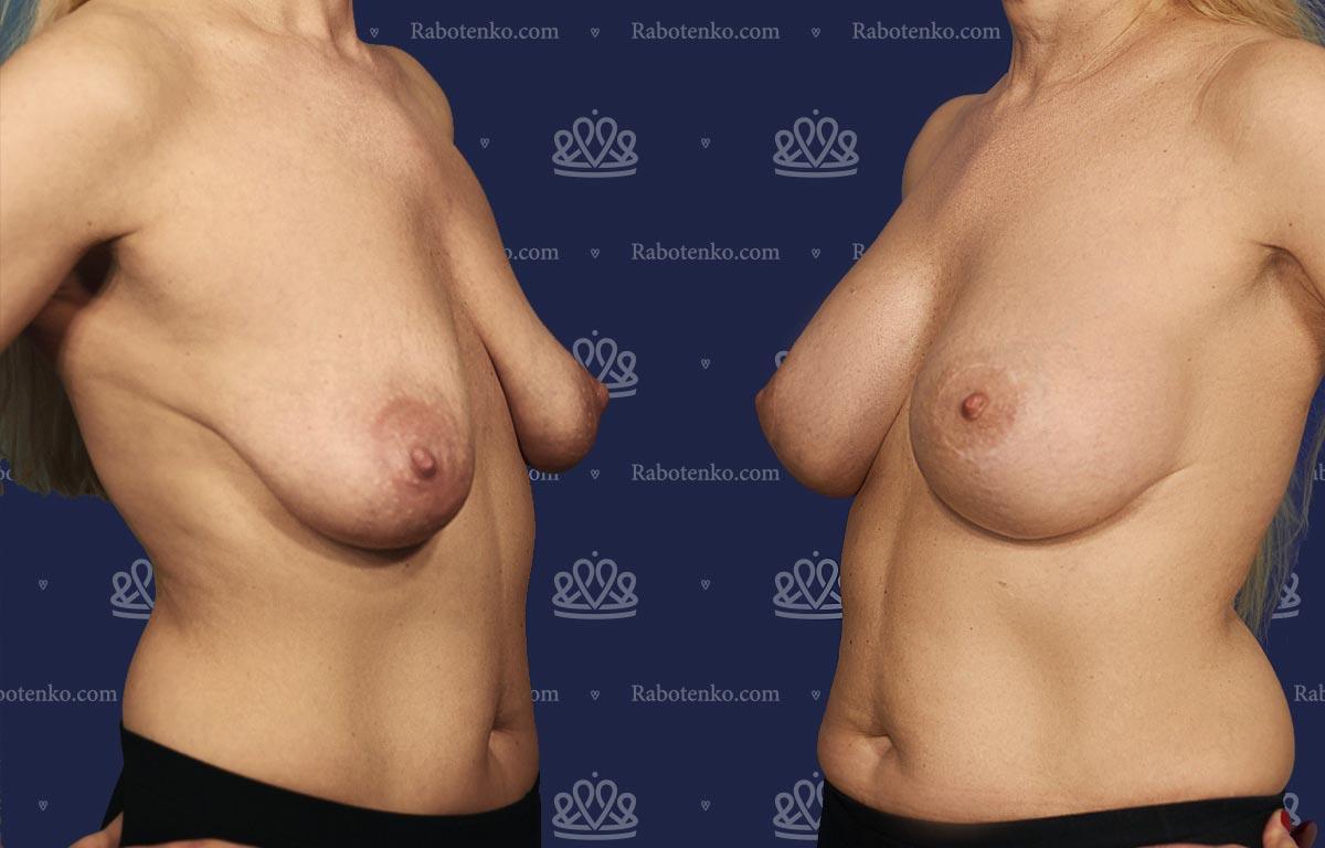 Пластика груди: результаты до и после - Пример №7-0 - Светлана Работенко