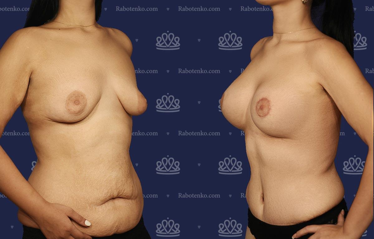 Пластика груди: результаты до и после - Пример №9-0 - Светлана Работенко