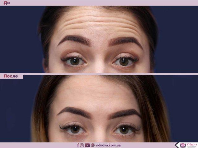 Все подробности об инъекциях в косметологии Maket blefaro 640x480