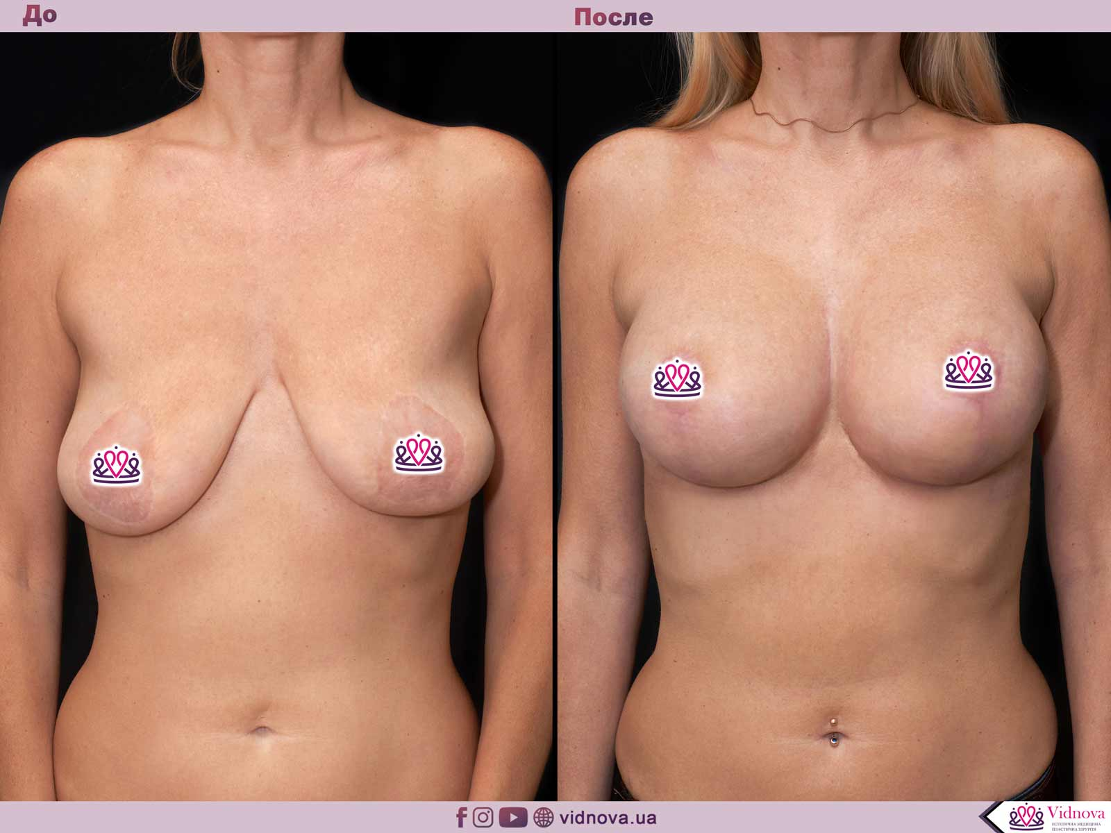 Пластика груди: результаты до и после - Пример №59-0 - Светлана Работенко