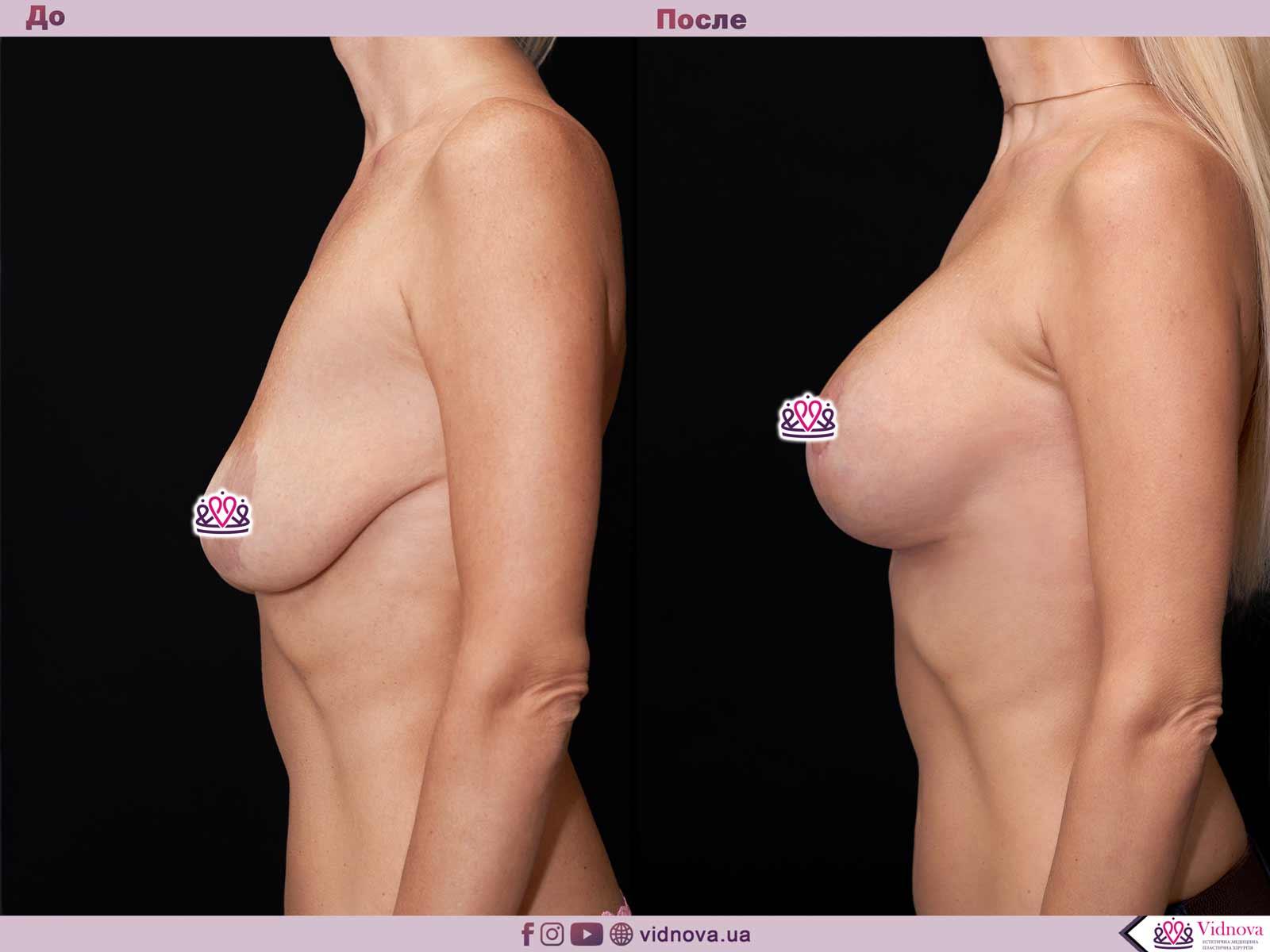 Пластика груди: результаты до и после - Пример №59-2 - Светлана Работенко