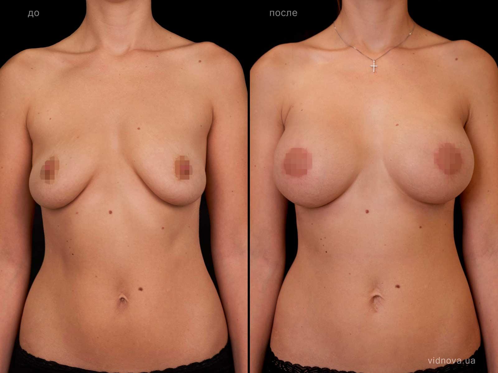 Пластика груди: результаты до и после - Пример №105-0 - Светлана Работенко