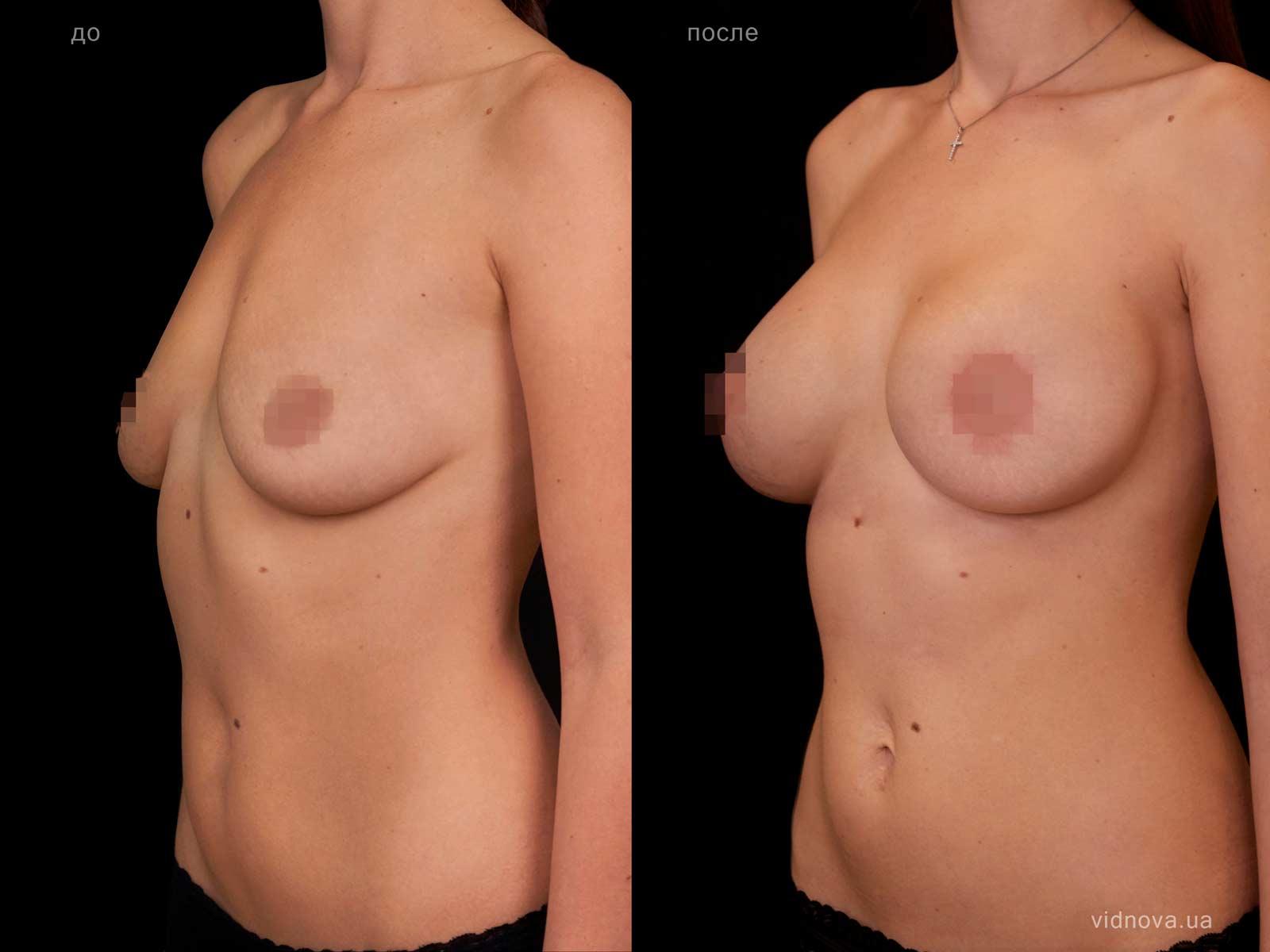 Пластика груди: результаты до и после - Пример №105-1 - Светлана Работенко
