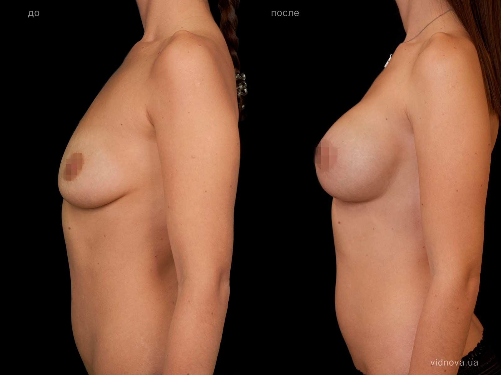 Пластика груди: результаты до и после - Пример №105-2 - Светлана Работенко