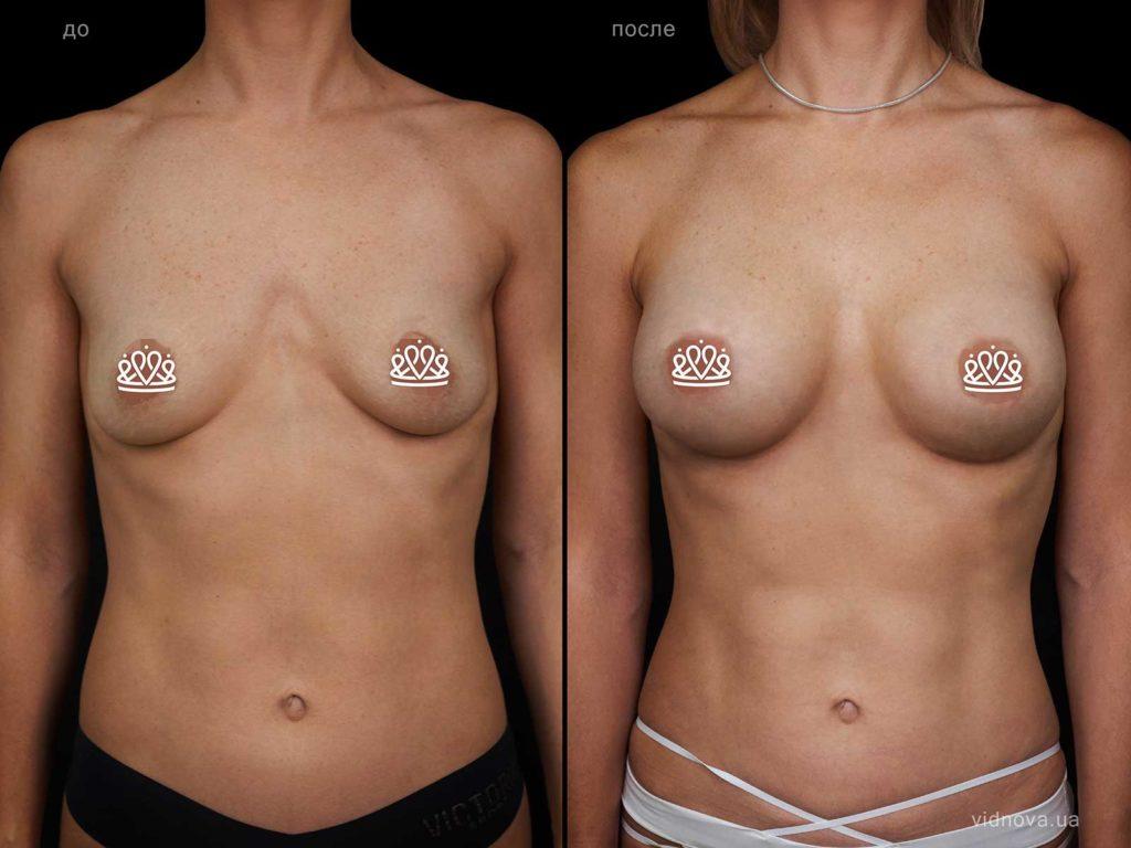 Пластика груди: акционное предложение maket grud rabotenko 01 s 1024x768